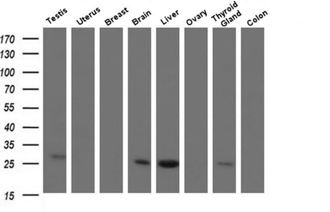 CMPK1 Mouse anti-Human, Clone: OTI1H8, Invitrogen 100 µL; Unconjugated