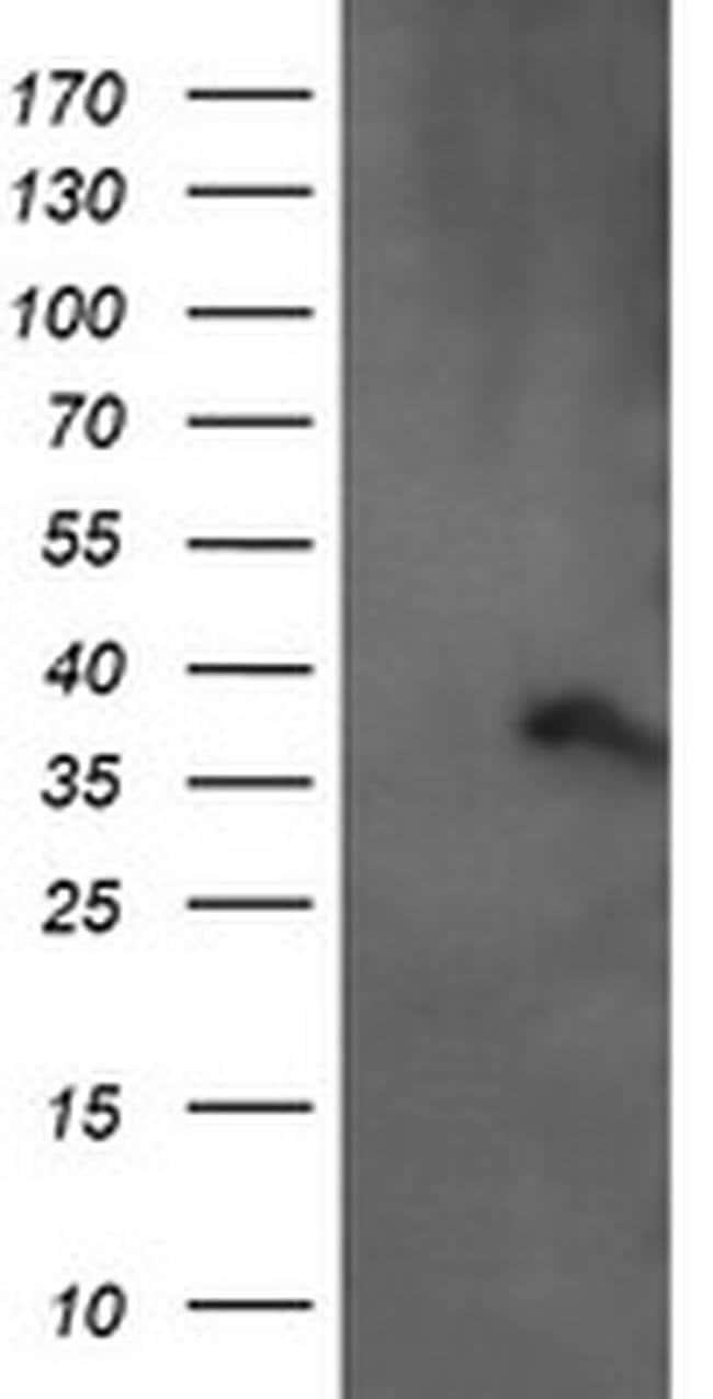 ARMC1 Mouse anti-Human, Clone: OTI2G8, Invitrogen 100 µL; Unconjugated