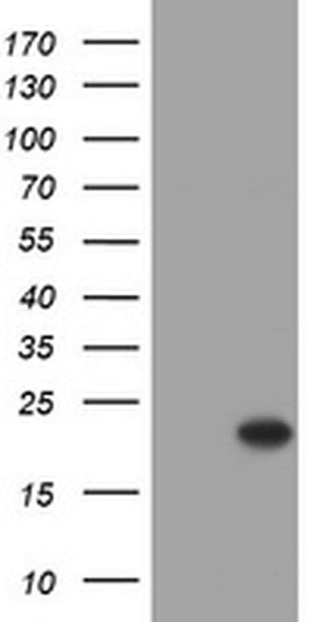 Alpha A Crystallin Mouse anti-Human, Clone: OTI2C3, Invitrogen 100 µL;