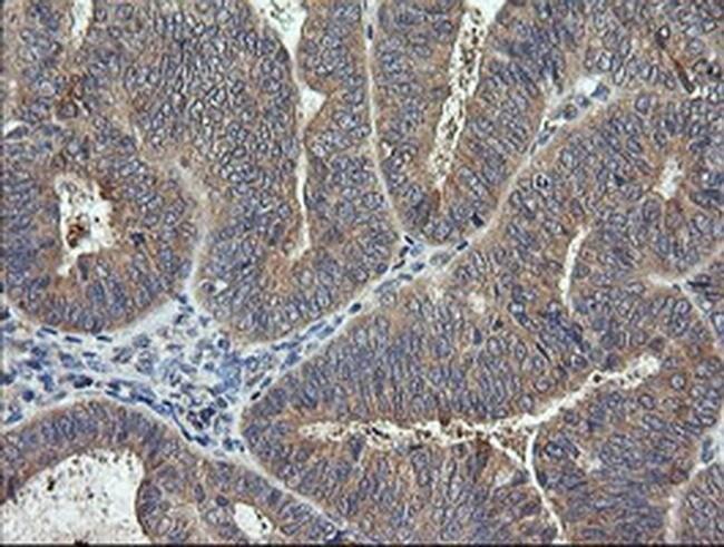 RhoJ Mouse anti-Human, Clone: OTI2C9, Invitrogen 100 µL; Unconjugated