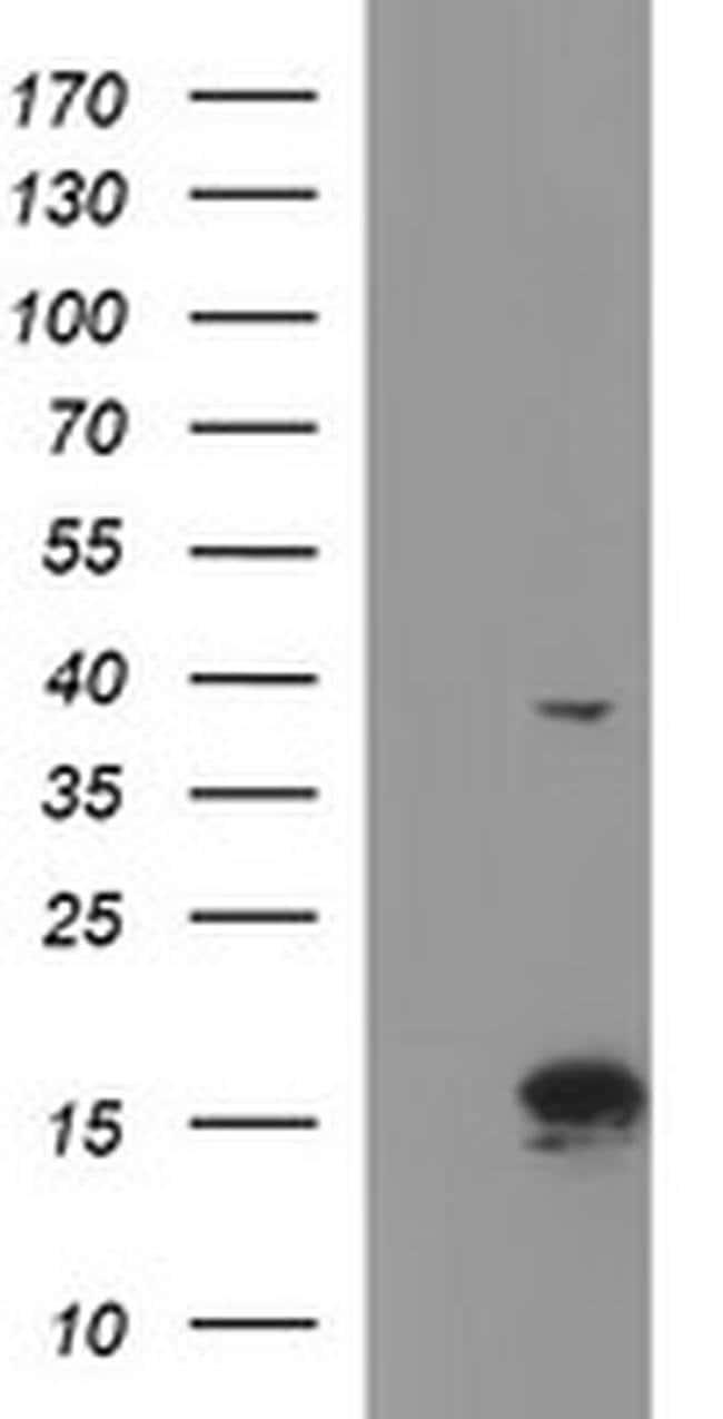 ATXN7L1 Mouse anti-Human, Clone: OTI4F6, Invitrogen 100 µL; Unconjugated