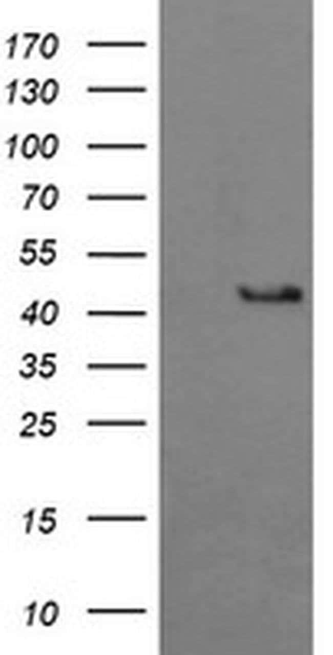 BBOX1 Mouse anti-Human, Clone: OTI4F9, Invitrogen 100 µL; Unconjugated