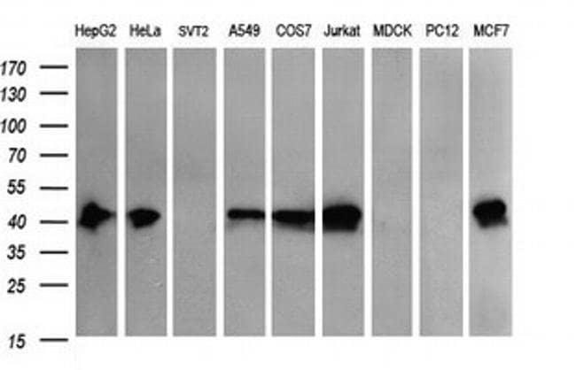 THUMPD1 Mouse anti-Human, Mouse, Non-human primate, Clone: OTI1H6, Invitrogen