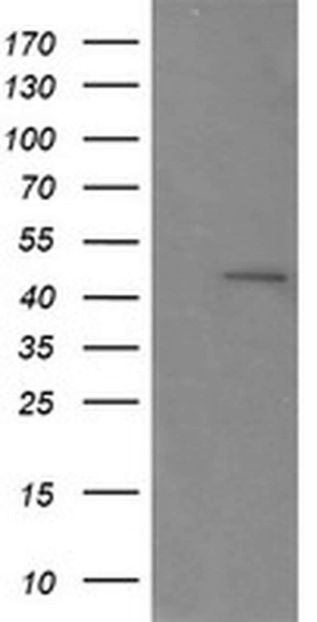 RNF39 Mouse anti-Canine, Human, Mouse, Non-human primate, Rat, Clone: OTI5E10,