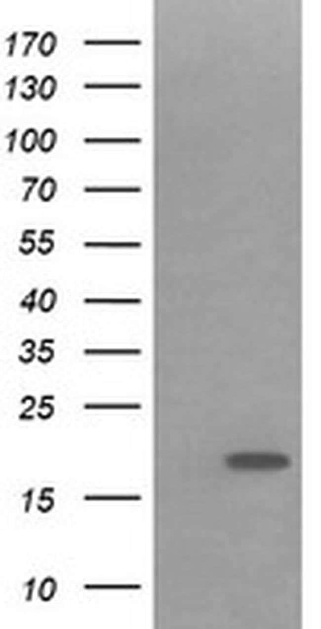 IL1F9 Mouse anti-Human, Clone: OTI2F4, Invitrogen 100 µL; Unconjugated