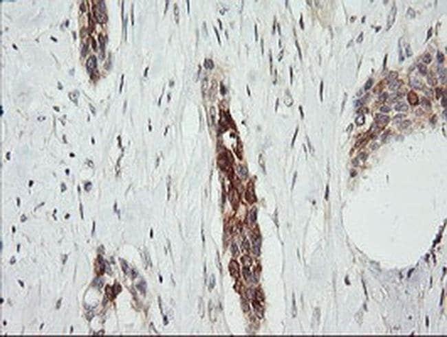 RARRES1 Mouse anti-Human, Clone: OTI1D2, Invitrogen 100 µL; Unconjugated