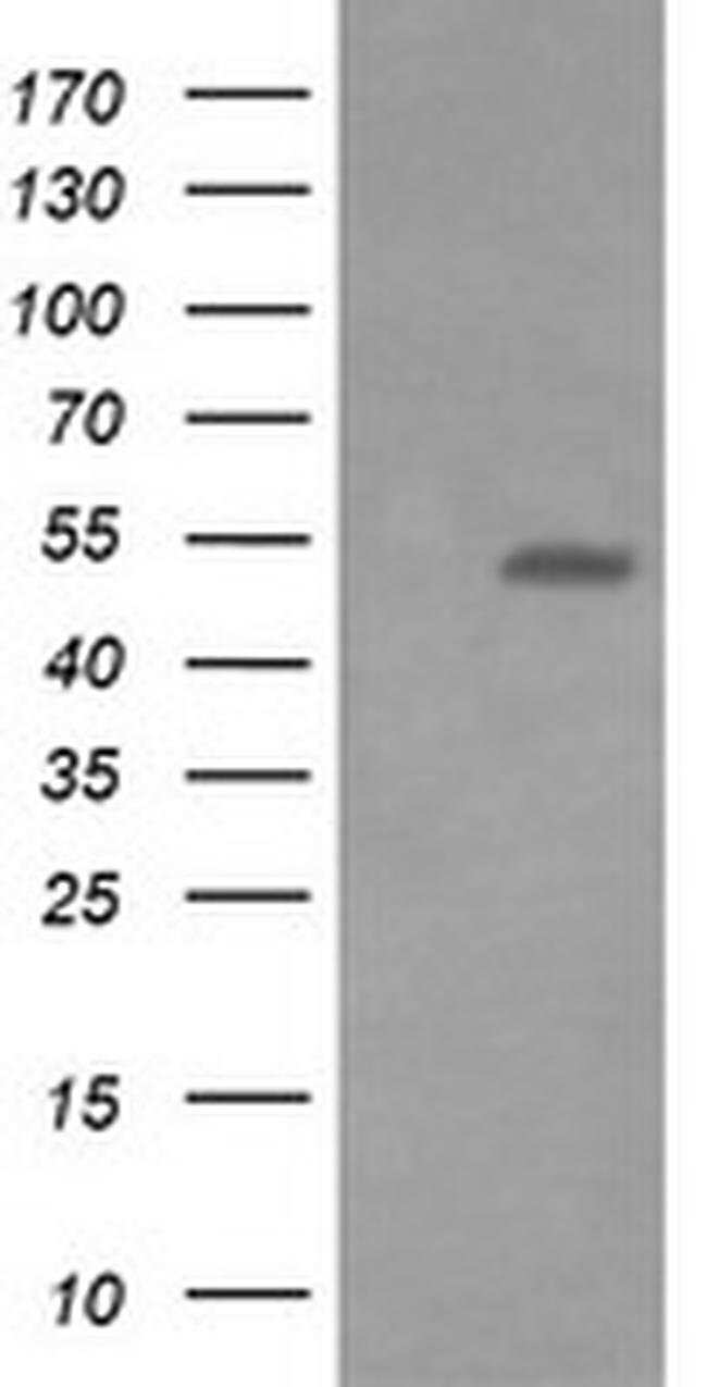 ERG Mouse anti-Human, Clone: OTI8A9, Invitrogen 100 µL; Unconjugated