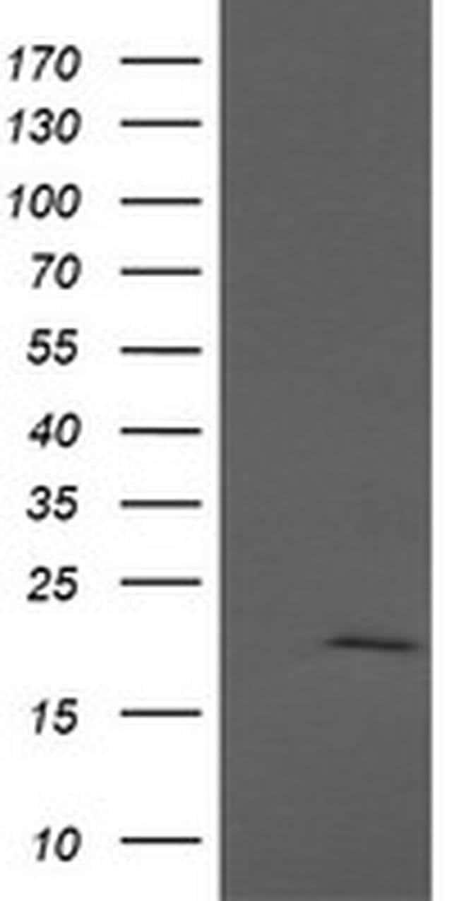 APC11 Mouse anti-Human, Clone: OTI3F5, Invitrogen 100 µL; Unconjugated