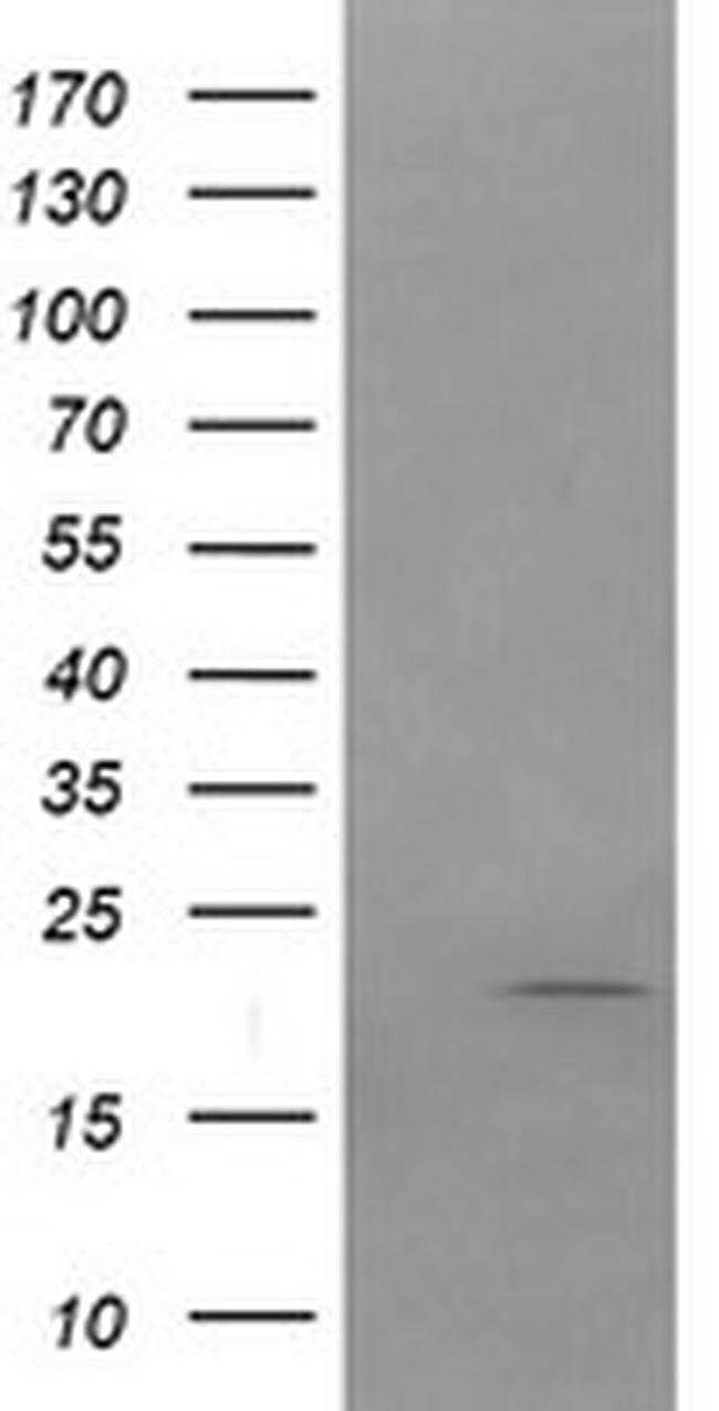 APC11 Mouse anti-Human, Clone: OTI1B11, Invitrogen 100 µL; Unconjugated