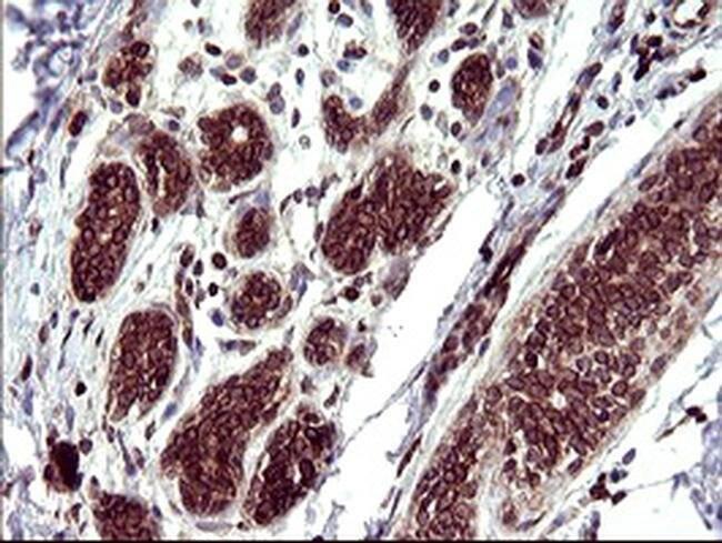 TMX Mouse anti-Human, Clone: OTI1G1, Invitrogen 100 µL; Unconjugated
