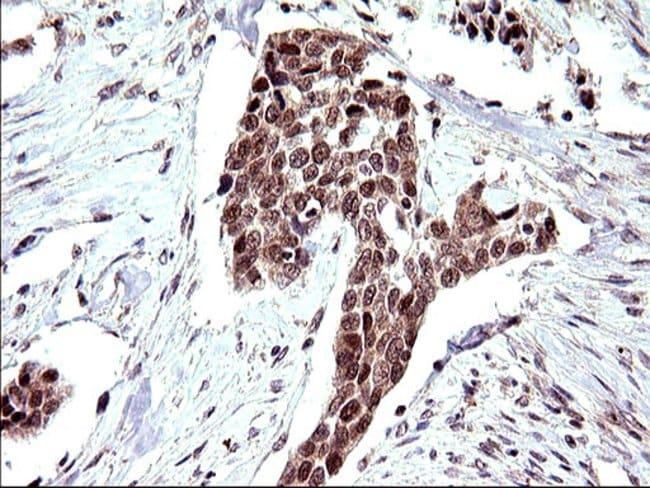 Necdin Mouse anti-Human, Clone: OTI5D1, Invitrogen 100 µL; Unconjugated