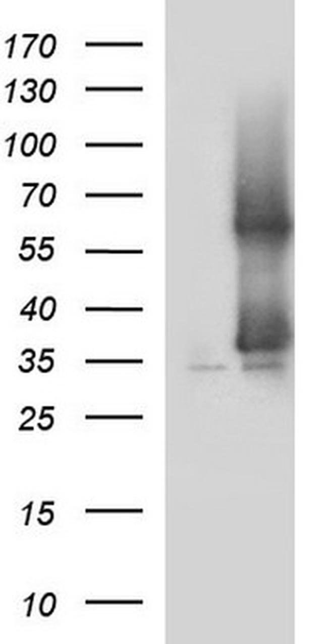 SCAMP2 Mouse anti-Human, Clone: OTI1H10, Invitrogen 100 µL; Unconjugated