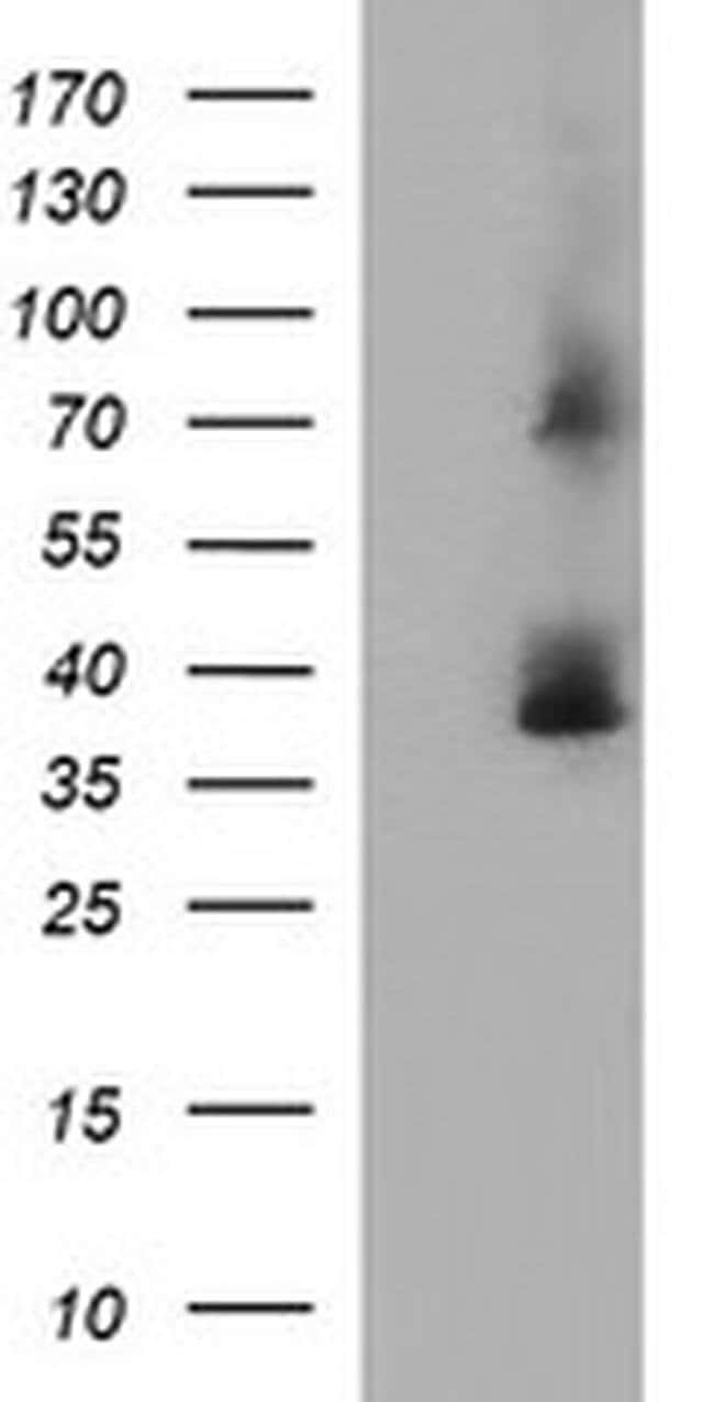 SCAMP2 Mouse anti-Human, Clone: OTI3C2, Invitrogen 100 µL; Unconjugated