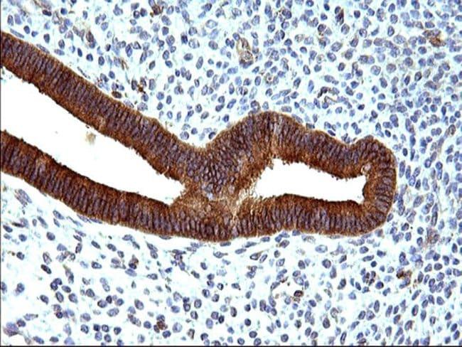 HSD17B4 Mouse anti-Human, Clone: OTI4C4, Invitrogen 100 µL; Unconjugated