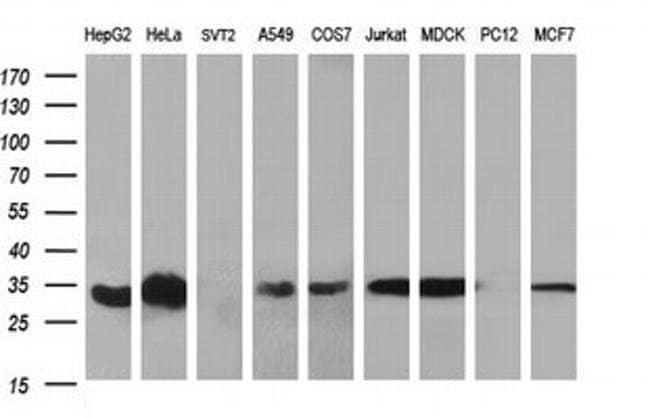 TMX Mouse anti-Human, Clone: OTI3H5, Invitrogen 100 µL; Unconjugated