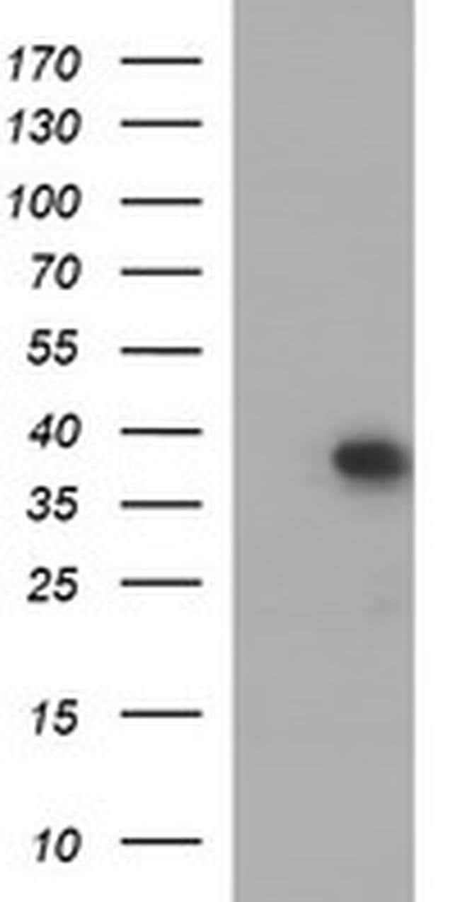 MCAT Mouse anti-Human, Clone: OTI2B7, Invitrogen 100 µL; Unconjugated
