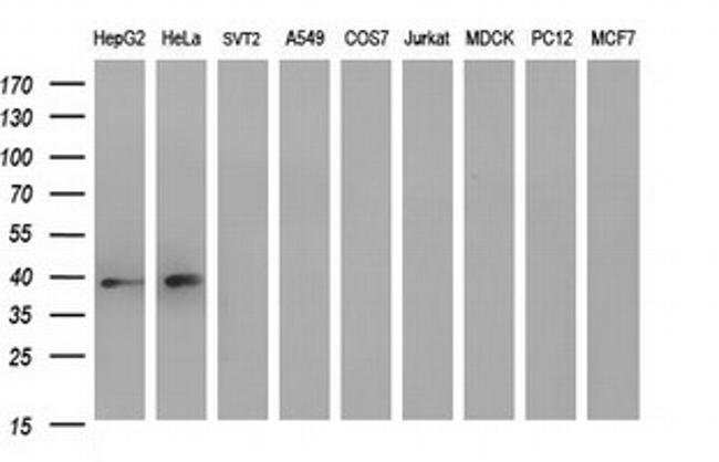 MCAT Mouse anti-Human, Clone: OTI2G1, Invitrogen 100 µL; Unconjugated