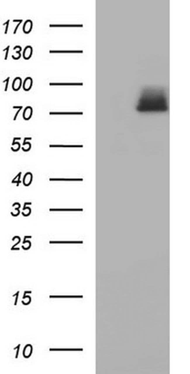 HSD17B4 Mouse anti-Human, Clone: OTI2C9, Invitrogen 100 µL; Unconjugated