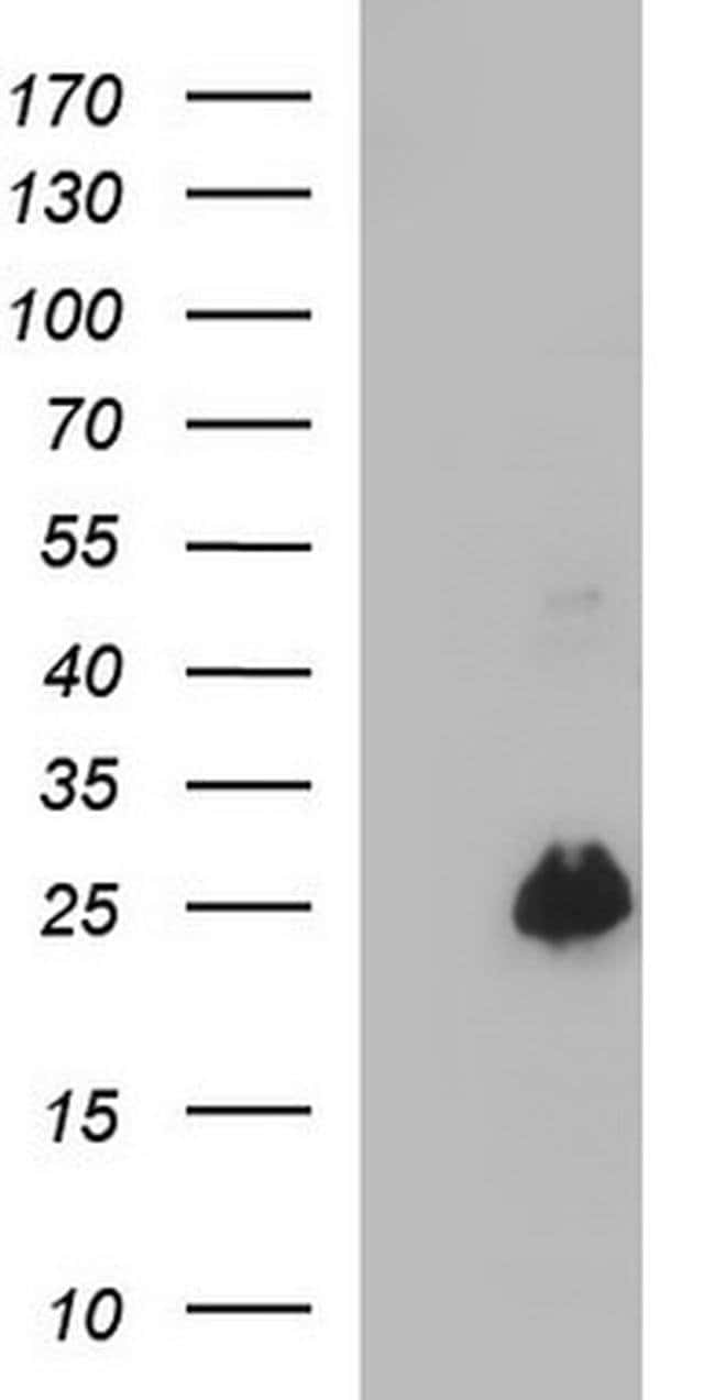 VEGFB Mouse anti-Human, Clone: OTI1H9, Invitrogen 100 µL; Unconjugated