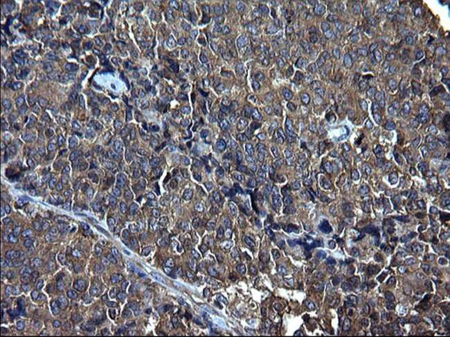 FNDC8 Mouse anti-Human, Clone: OTI1C10, Invitrogen 100 µL; Unconjugated
