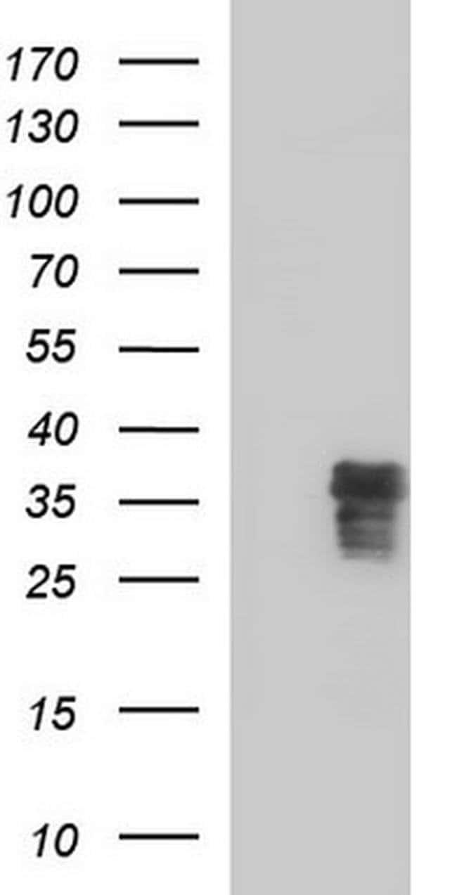 ZFAND3 Mouse anti-Human, Clone: OTI1H10, Invitrogen 100 µL; Unconjugated