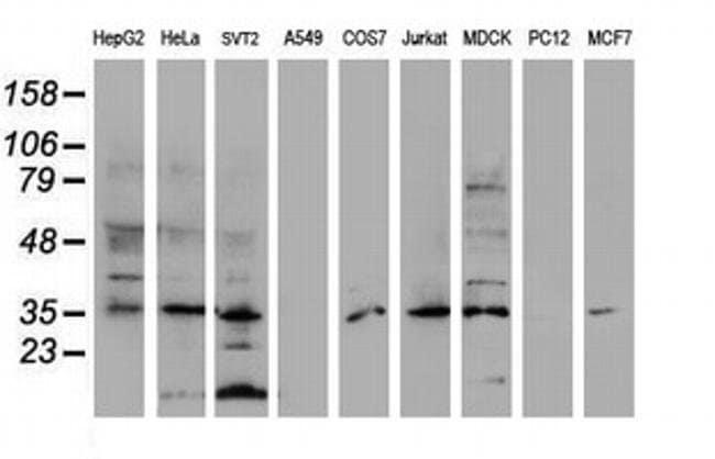 DPPA4 Mouse anti-Human, Clone: OTI1C3, Invitrogen 100 µL; Unconjugated