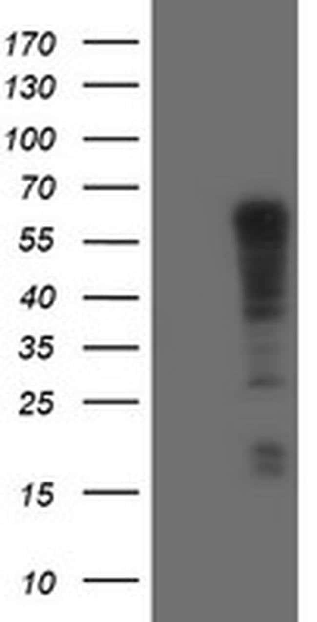 TRIM9 Mouse anti-Human, Clone: OTI2A1, Invitrogen 100 µL; Unconjugated
