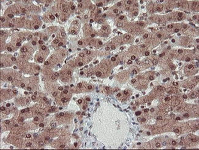 TRIP Mouse anti-Human, Clone: OTI2D4, Invitrogen 100 µL; Unconjugated
