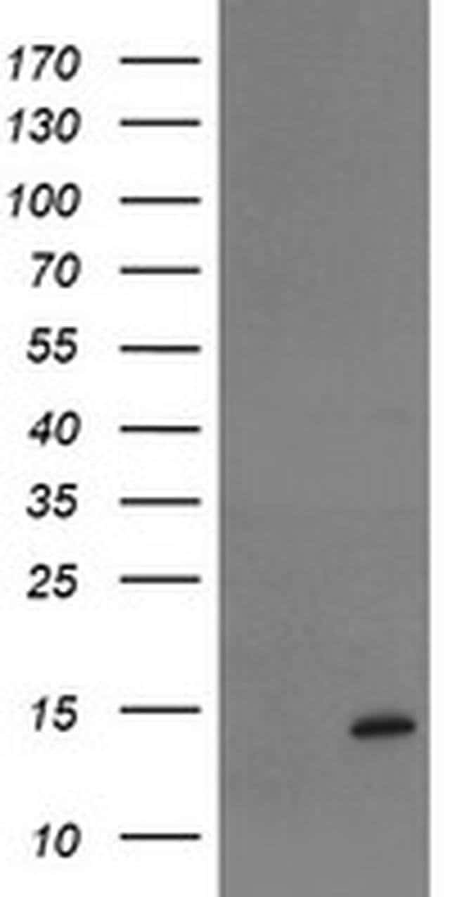 TPRKB Mouse anti-Human, Clone: OTI3E3, Invitrogen 100 µL; Unconjugated