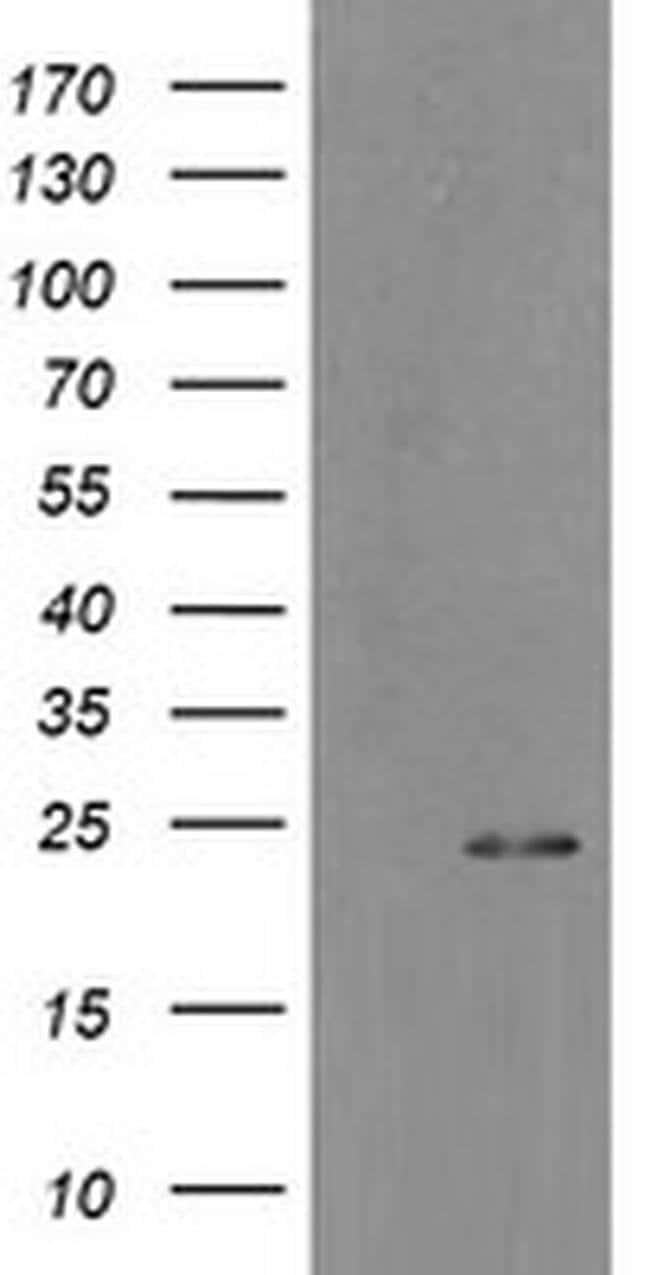 MYL7 Mouse anti-Human, Clone: OTI7F2, Invitrogen 100 µL; Unconjugated