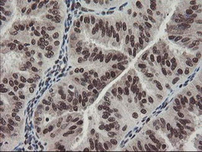 TPRKB Mouse anti-Human, Clone: OTI1E9, Invitrogen 100 µL; Unconjugated