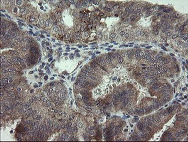 ARL2BP Mouse anti-Human, Clone: OTI1A10, Invitrogen 100 µL; Unconjugated