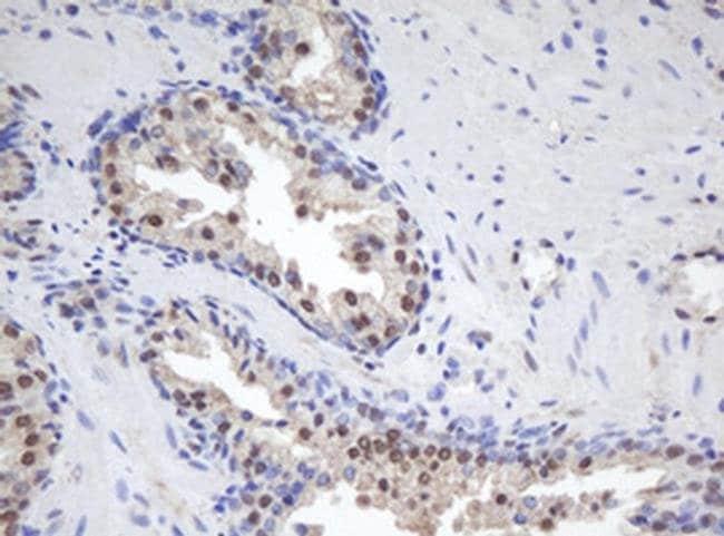 MORF4 Mouse anti-Human, Clone: OTI1B12, Invitrogen 100 µL; Unconjugated