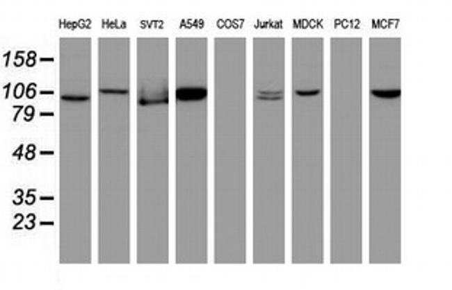 Cullin 4B Mouse anti-Canine, Human, Mouse, Clone: OTI1C4, Invitrogen 100