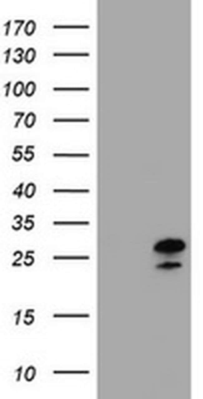 ZFAND5 Mouse anti-Human, Clone: OTI5H8, Invitrogen 100 µL; Unconjugated
