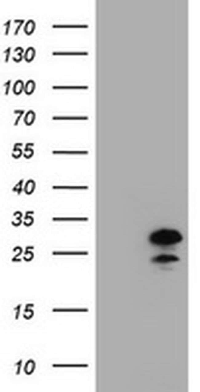 ZFAND5 Mouse anti-Human, Clone: OTI9F2, Invitrogen 100 µL; Unconjugated