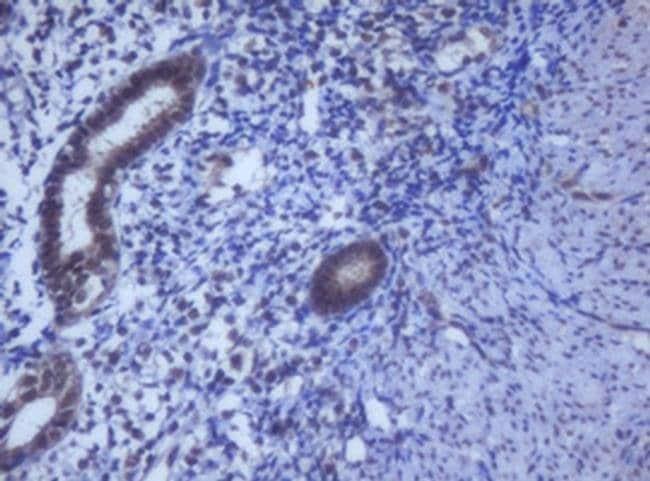 DDX59 Mouse anti-Human, Clone: OTI2G1, Invitrogen 100 µL; Unconjugated