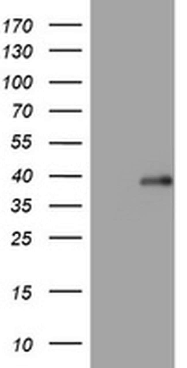 PIK3C2A Mouse anti-Human, Clone: OTI1A9, Invitrogen 100 µL; Unconjugated