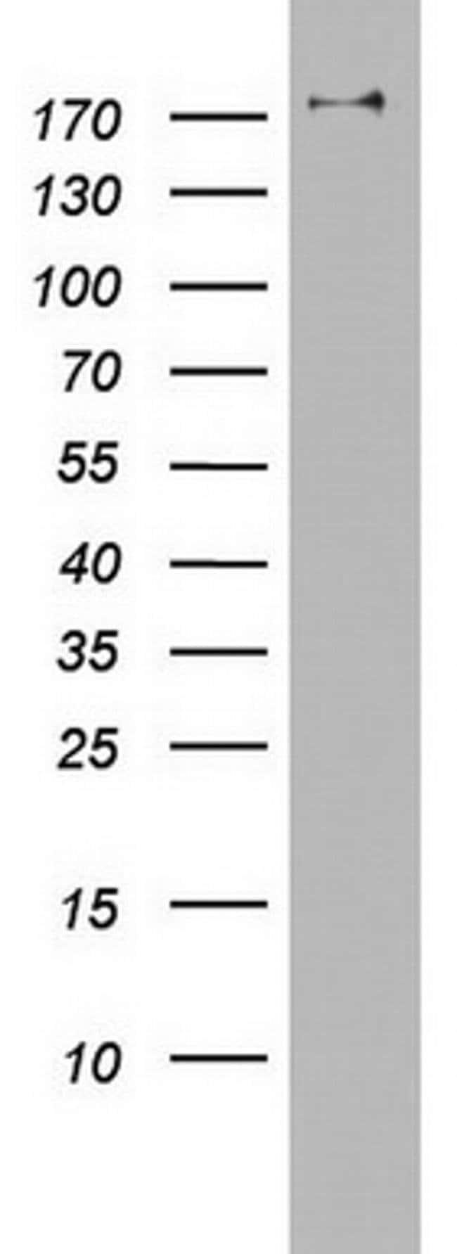 PIK3C2A Mouse anti-Human, Clone: OTI2C2, Invitrogen 100 µL; Unconjugated