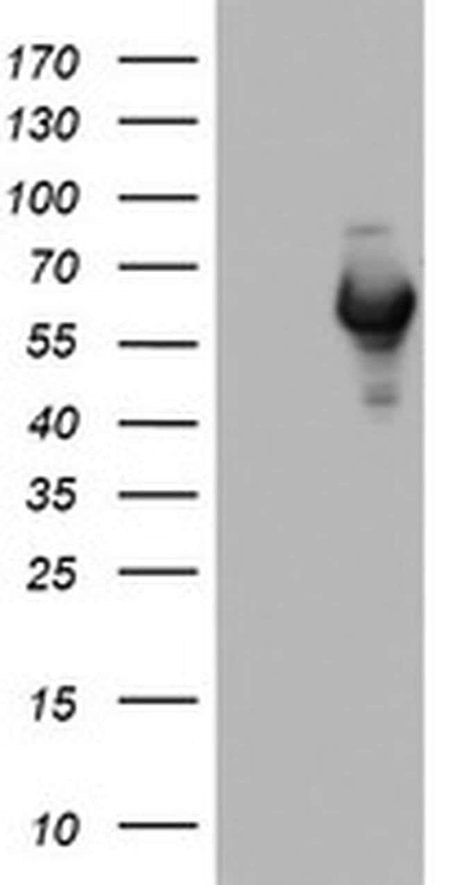 NAB1 Mouse anti-Human, Clone: OTI4F11, Invitrogen 100 µL; Unconjugated