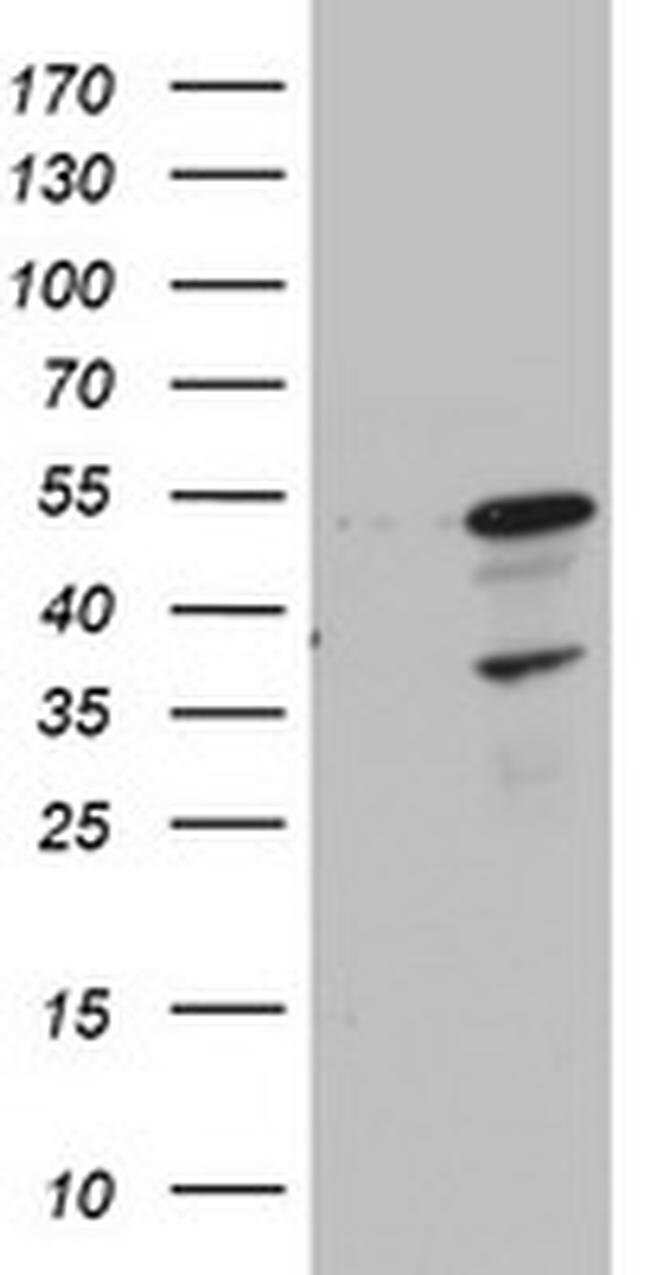 CDCA7L Mouse anti-Human, Clone: OTI1A12, Invitrogen 100 µL; Unconjugated