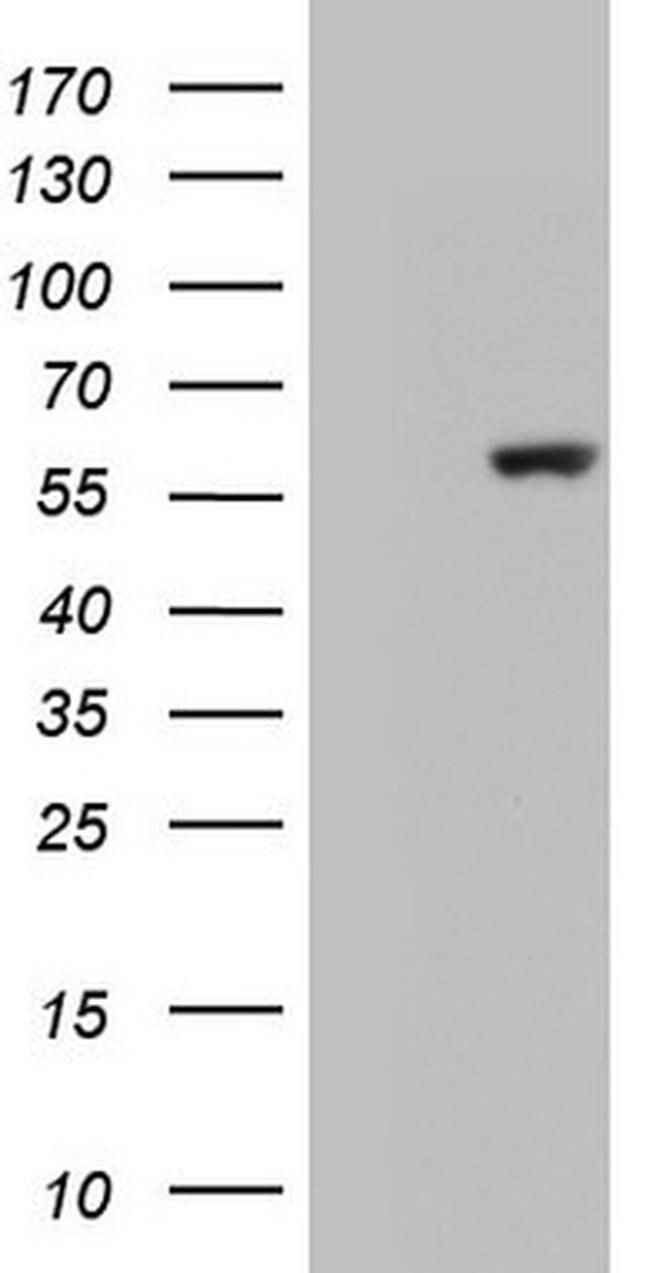 GBA Mouse anti-Human, Clone: OTI1D12, Invitrogen 100 µL; Unconjugated