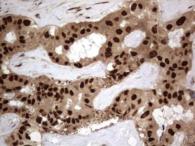 Macro H2A.2 Mouse anti-Human, Clone: OTI1C2, Invitrogen 100 µL; Unconjugated