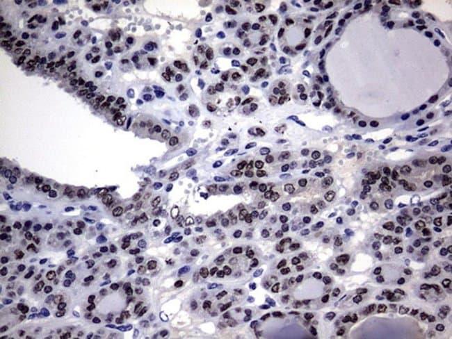 Macro H2A.2 Mouse anti-Human, Clone: OTI1F5, Invitrogen 100 µL; Unconjugated