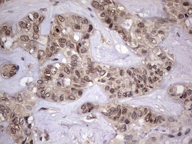 ZNF286A Mouse anti-Human, Clone: OTI7D2, Invitrogen 100 µL; Unconjugated