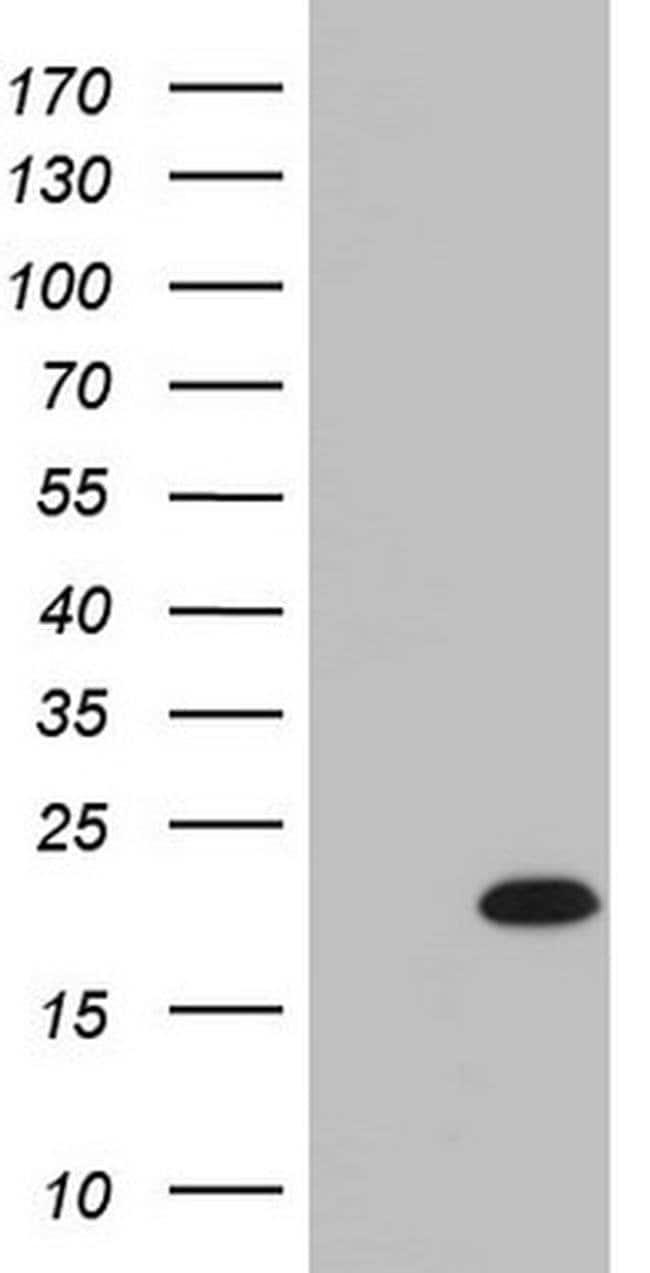 IL-20 Mouse anti-Human, Clone: OTI2B8, Invitrogen 100 µL; Unconjugated