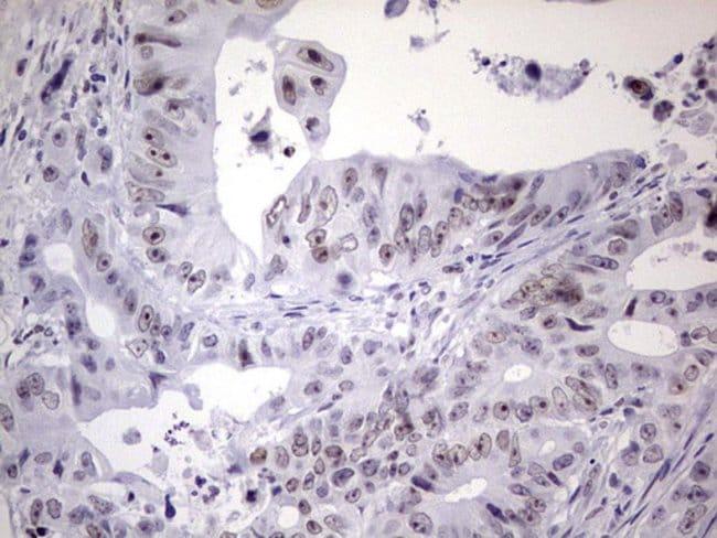 NAB2 Mouse anti-Human, Clone: OTI5D7, Invitrogen 100 µL; Unconjugated
