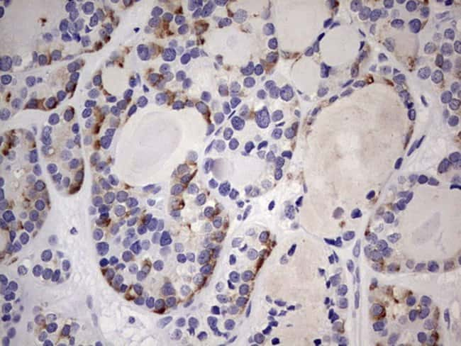 TRIM27 Mouse anti-Human, Clone: OTI3B12, Invitrogen 100 µL; Unconjugated