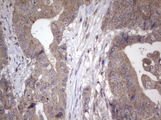 NAB2 Mouse anti-Human, Clone: OTI1E12, Invitrogen 100 µL; Unconjugated