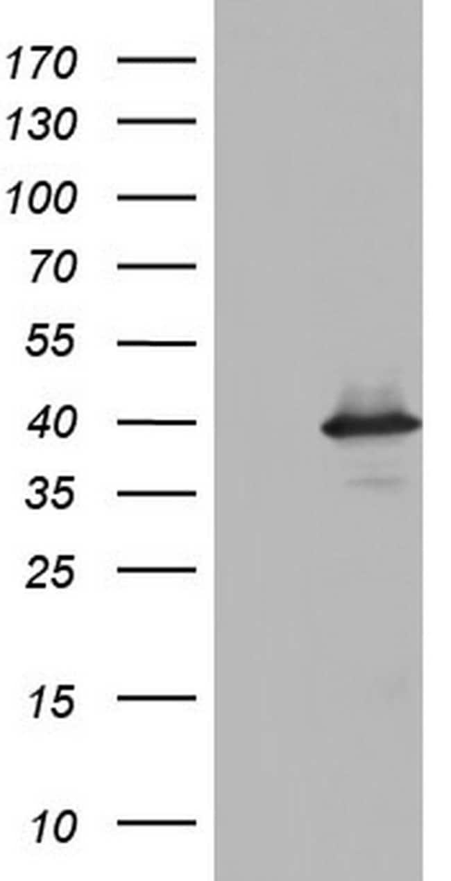 UFD1L Mouse anti-Human, Clone: OTI8G6, Invitrogen 100 µL; Unconjugated